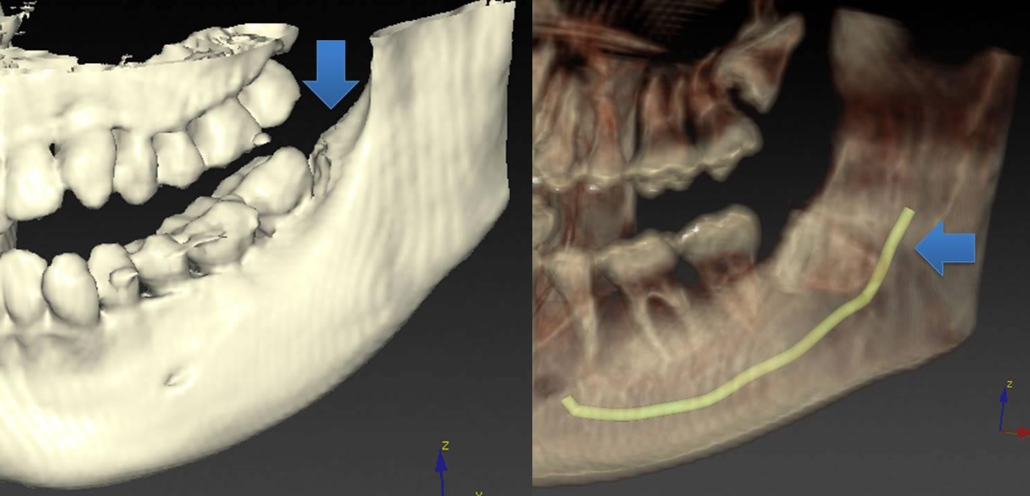 CTによる智歯診断