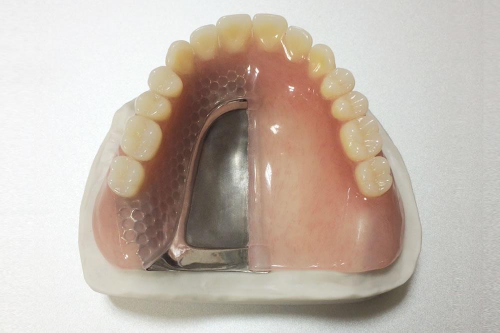 トルティッシュ義歯