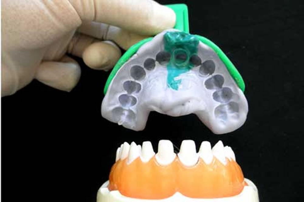 入れ歯の型とり