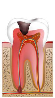 重度の虫歯に行なう