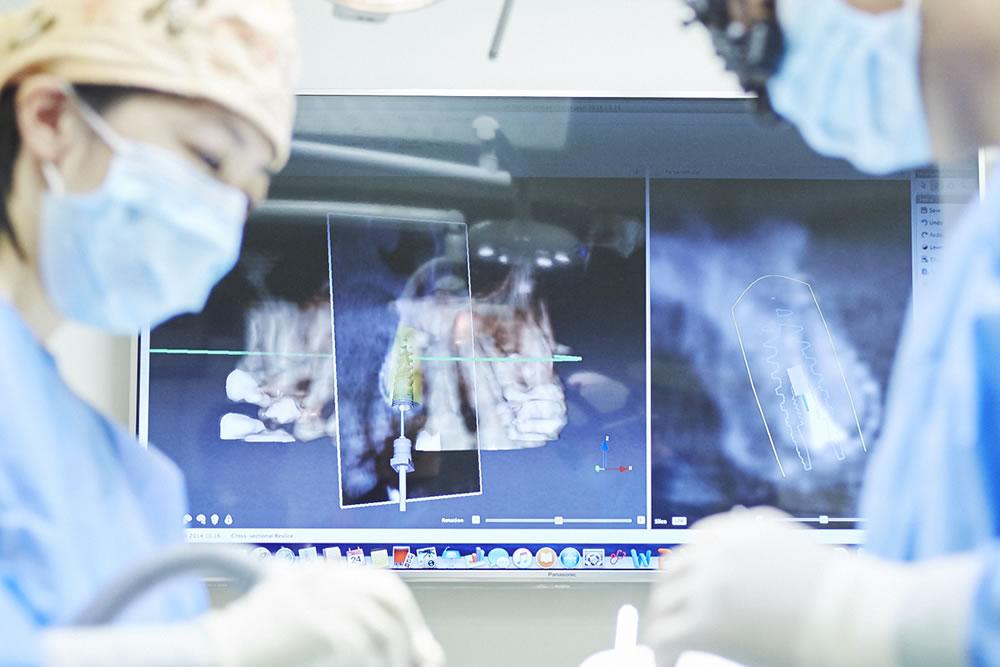CT(断層撮影法)
