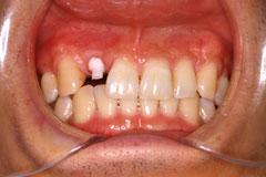 1歯欠損単独インプラント