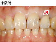 前歯1本欠損
