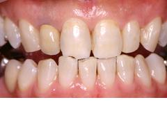 前歯部審美治療例