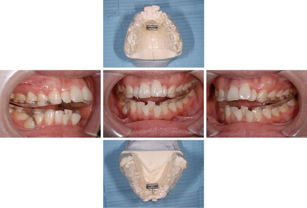 顎骨拡大のためのマウスピースを装着
