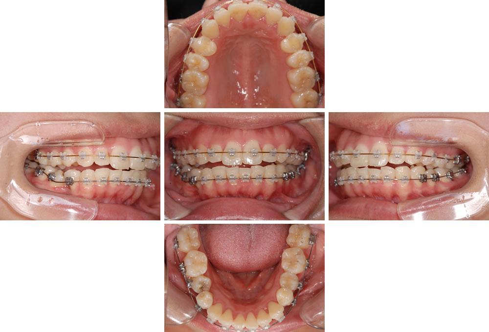 歯列の正常化と不定愁訴の改善